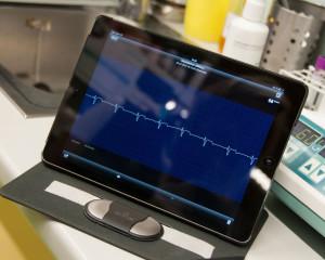 Mobiles EKG
